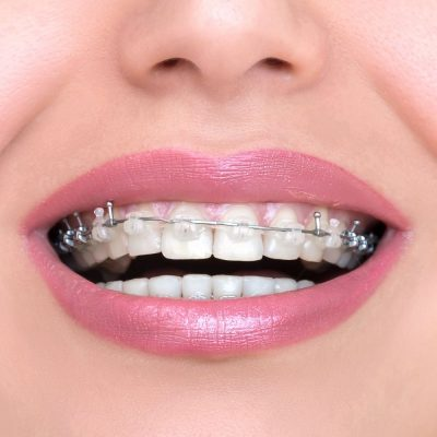 Closeup Ceramic and Metal Braces on Teeth. Self-ligating Brackets. Orthodontic Treatment. Woman Smiling Showing Dental Braces.